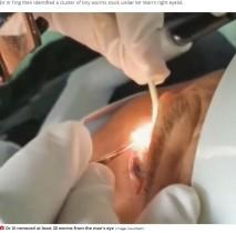 【海外発!Breaking News】60歳男性の瞼の裏から寄生虫20匹を摘出 1年も目に違和感(中国)