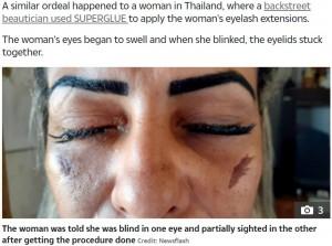 【海外発!Breaking News】まつ毛エクステ施術中に接着剤が目に 女性が片目を失明(ブラジル)
