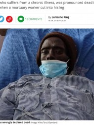 【海外発!Breaking News】遺体安置室に運ばれた男性、防腐処理で脚を傷つけられ息を吹き返す(ケニア)