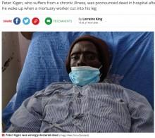 遺体安置室に運ばれた男性、防腐処理で脚を傷つけられ息を吹き返す(ケニア)