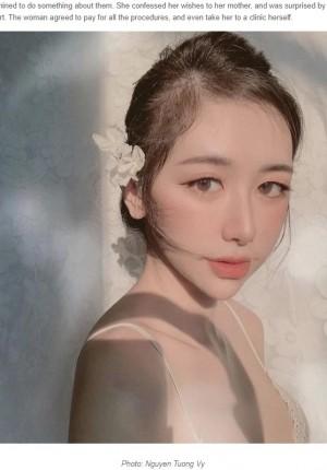 【海外発!Breaking News】容姿が原因で恋人と別れ、美容整形した21歳女性「後悔は全くない」(ベトナム)
