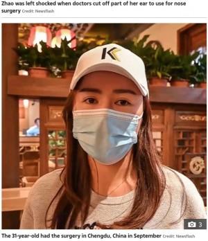 【海外発!Breaking News】「イヤホンが使えない!」鼻の美容整形手術で耳の思わぬ箇所を切除された女性(中国)