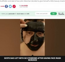 【海外発!Breaking News】塗って剥がす顔パックを眉毛にも塗布 30歳男性がとんだ悲劇に(スコットランド)<動画あり>