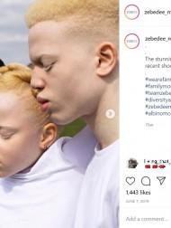 【海外発!Breaking News】アルビノ2人を含む3きょうだいがモデルに「偏見をなくし、美しさの定義を変えたい」(英)