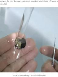 【海外発!Breaking News】6歳の時に鼻に突っ込んだまま忘れてしまった硬貨、53年後に摘出される(露)
