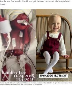 体重379グラムの誕生時と2歳の誕生日約3週間前のカンブリーちゃん(画像は『USA TODAY 2020年11月23日付「Beating the odds: The world's most premature twins to celebrate 2nd birthday」(Jade Ewoldt/Special To The Register)』のスクリーンショット)