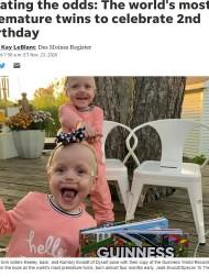 【海外発!Breaking News】予定日より4か月半早く誕生し「ギネス記録」を持つ双子、1ドル札ほどの身長が80センチになって2歳に(米)