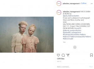 アルビノのセム君とノラちゃん(画像は『Zebedee Management 2020年7月31日付Instagram「THIS IS SHEM & NORA by @julia_fullertonbatten」』のスクリーンショット)
