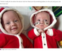 【海外発!Breaking News】大きさが全く異なる一卵性双生児、困難を乗り越えて4歳に(英)