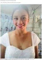 【海外発!Breaking News】鼻のニキビを潰した少女、顔が「風船のように」腫れて視力にも影響が(フィリピン)