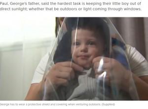 しっかりと紫外線を遮断することが大切(画像は『9Now 2020年11月29日付「Toddler allergic to the sun suffering from rare genetic condition」(Supplied)』のスクリーンショット)