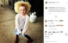 【海外発!Breaking News】櫛でとかせない頭髪症候群の10歳女児「人と違うことは個性、私はこの髪が好き!」(豪)