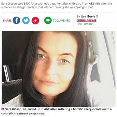 【海外発!Breaking News】美容注射によるアレルギーで顔が変形した女性「まるでエレファント・マンのようだった」(スコットランド)