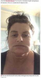 頰が角張ったように腫れてしまったサラさん(画像は『Daily Star 2021年1月10日付「Mum's agony as £400 cosmetic injection left her looking like 'the Elephant man'」(Image: Collect)』のスクリーンショット)
