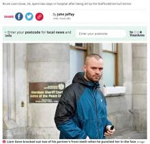 【海外発!Breaking News】飼い主の女性を守るため果敢に立ち向かった犬、DV男を病院送りに(スコットランド)