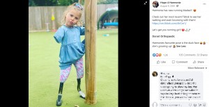 【海外発!Breaking News】生後10か月で四肢切断した7歳女児「夢はパラリンピック選手」(英)<動画あり>