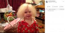 「櫛でとかせない頭髪症候群」の女児 9歳になり髪に変化が(英)
