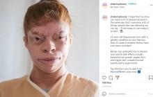【海外発!Breaking News】世界で20例以下 大きな口、目の異常を持つ女性 いじめを受けるも「亡き父が『くじけるな』と教えてくれた」(ブラジル)<動画あり>