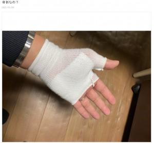 負傷した痛々しい左手(画像は『笠井信輔 2020年1月8日付オフィシャルブログ「骨折なの?」』のスクリーンショット)