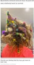 髪に大量のおもちゃが絡まった6歳女児 20時間かけて取り除いた母親「悪夢のようだった」(米)