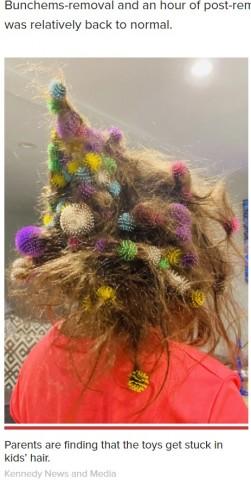 【海外発!Breaking News】髪に大量のおもちゃが絡まった6歳女児 20時間かけて取り除いた母親「悪夢のようだった」(米)