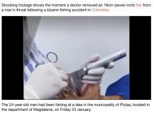 【海外発!Breaking News】釣りの最中に口にくわえた魚が喉の奥に潜り込み、窒息しかけた男性(コロンビア)<動画あり>