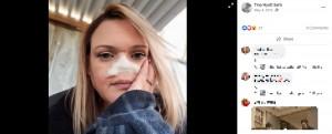 ガーゼで鼻を覆うティナさん(画像は『Tina Hyatt Earls 2019年5月4日付Facebook』のスクリーンショット)