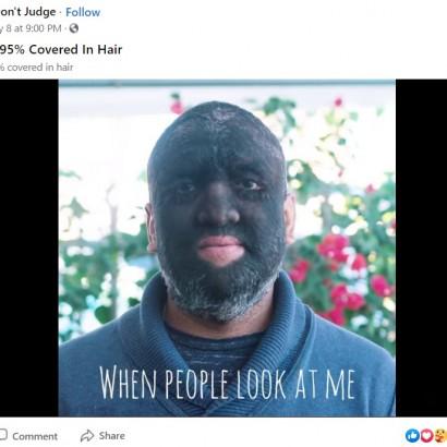 【海外発!Breaking News】「狼男」と呼ばれる男性、全身の95%以上に毛が生えるも「僕は幸せ」(米)<動画あり>