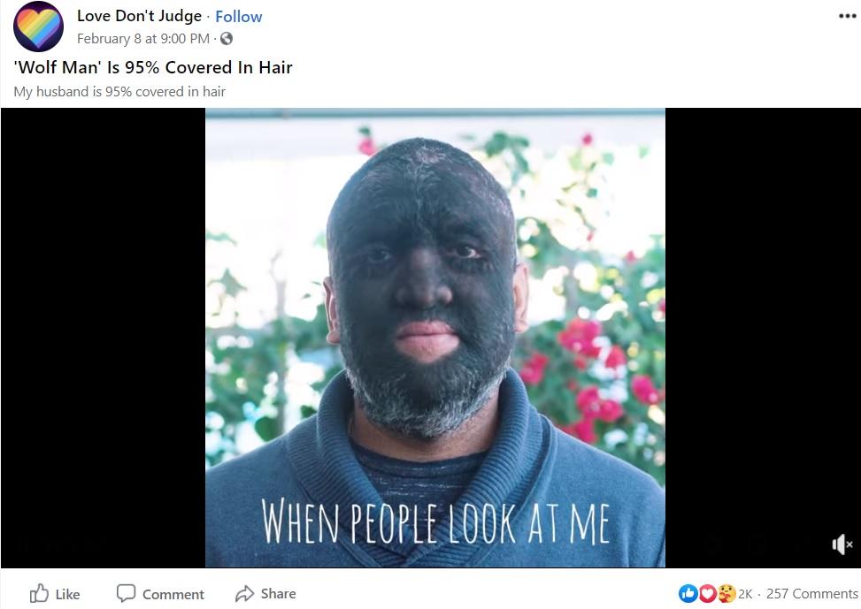 多毛症で「狼男」と呼ばれる男性(画像は『Love Don't Judge 2021年2月8日付Facebook「'Wolf Man' Is 95% Covered In Hair」』のスクリーンショット)