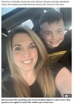 8歳息子の耳から出てきたひも状の物体に「脳を食べる虫」と勘違いした母親(英)