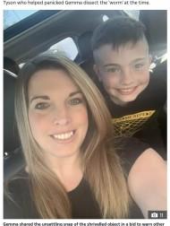 【海外発!Breaking News】8歳息子の耳から出てきたひも状の物体に「脳を食べる虫」と勘違いした母親(英)