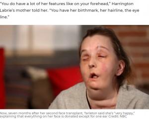 昨年7月に2度目の顔面移植手術を受けたカルメンさん(画像は『7NEWS.com.au 2021年2月28日付「Domestic abuse survivor becomes 1st person ever to undergo second face transplant」(Credit: NBC)』のスクリーンショット)
