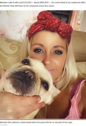 【海外発!Breaking News】愛犬に噛まれた小さな傷で、手指を切断へ 40歳女性が命の危機に(英)
