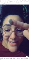 【海外発!Breaking News】2歳でビキニラインから中指に皮膚移植した女性、思春期になると発毛し仰天(米)