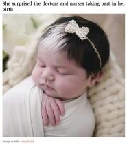 【海外発!Breaking News】遺伝子疾患により前髪だけ白髪の母娘 「人と違う外見を隠すのではなく楽しんで!」(ブラジル)