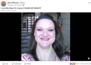 【海外発!Breaking News】がんで鼻を失った女性「義鼻は付けない。生きていることより美しいことはないから」(米)<動画あり>