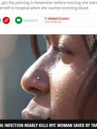 【海外発!Breaking News】鼻ピアスからB型肝炎ウイルスに感染した女性、重症化し目覚めたら肝移植が終わっていた(米)