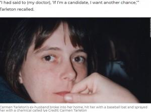 【海外発!Breaking News】顔面崩壊し、7か月前に2度目の顔面移植を受けた女性「ネガティブなことは考えない」(米)<動画あり>