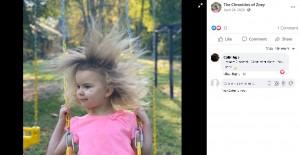 【海外発!Breaking News】ライオンのたてがみのような髪を持つ「櫛でとかせない頭髪症候群」の5歳女児(米)