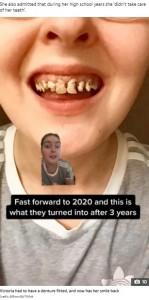 虫歯が進行した2020年のヴィクトリアさん(画像は『The Sun 2021年3月2日付「SODA SCREAM Mum who lost ALL her top teeth after drinking soda every day issues dental hygiene warning」(Credit: @lilnovi95/TikTok)』のスクリーンショット)