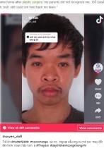 「君の容貌では就職できない」と言われた26歳男性、整形でまるで別人に 親でさえ認識不可(ベトナム)