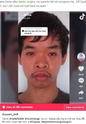 【海外発!Breaking News】「君の容貌では就職できない」と言われた26歳男性、整形でまるで別人に 親でさえ認識不可(ベトナム)