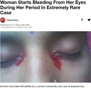 【海外発!Breaking News】生理の時にだけ血の涙を流す25歳女性「非常に珍しいケース」と医師(印)
