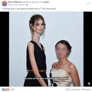 11歳から身長がぐんぐん伸びたというリュドミーラさん(画像は『Born Different 2021年3月8日付Facebook「A woman with a rare gene mutation has a 7-inch-long neck」』のスクリーンショット)