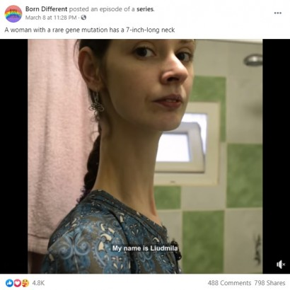 【海外発!Breaking News】遺伝子異常で身長202センチ、首が18センチある25歳女性「今の自分が好き」(ウクライナ)<動画あり>