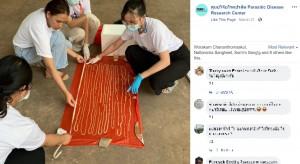 【海外発!Breaking News】排泄物から長さ18メートルの寄生虫 医師ら「タイ国内では過去50年で最長」