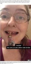 炭酸飲料を毎日10年間、喫煙5年、口腔ケアせず若くして総入れ歯になった女性「私のようにはならないで」(米)