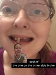 【海外発!Breaking News】炭酸飲料を毎日10年間、喫煙5年、口腔ケアせず若くして総入れ歯になった女性「私のようにはならないで」(米)