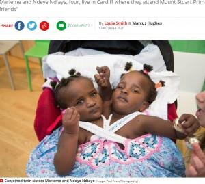 【海外発!Breaking News】「長くは生きられない」と言われた結合双生児、学校にも通い5月で5歳に(英)