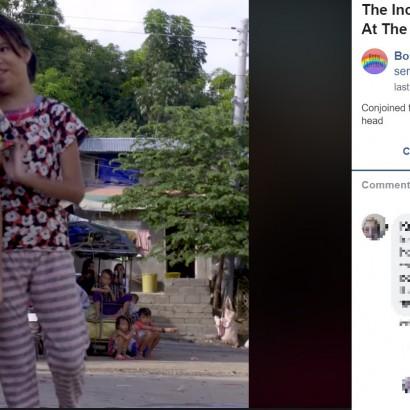【海外発!Breaking News】頭部でつながった結合双生児が13歳に「お金を貯めて分離手術がしたい」(フィリピン)<動画あり>